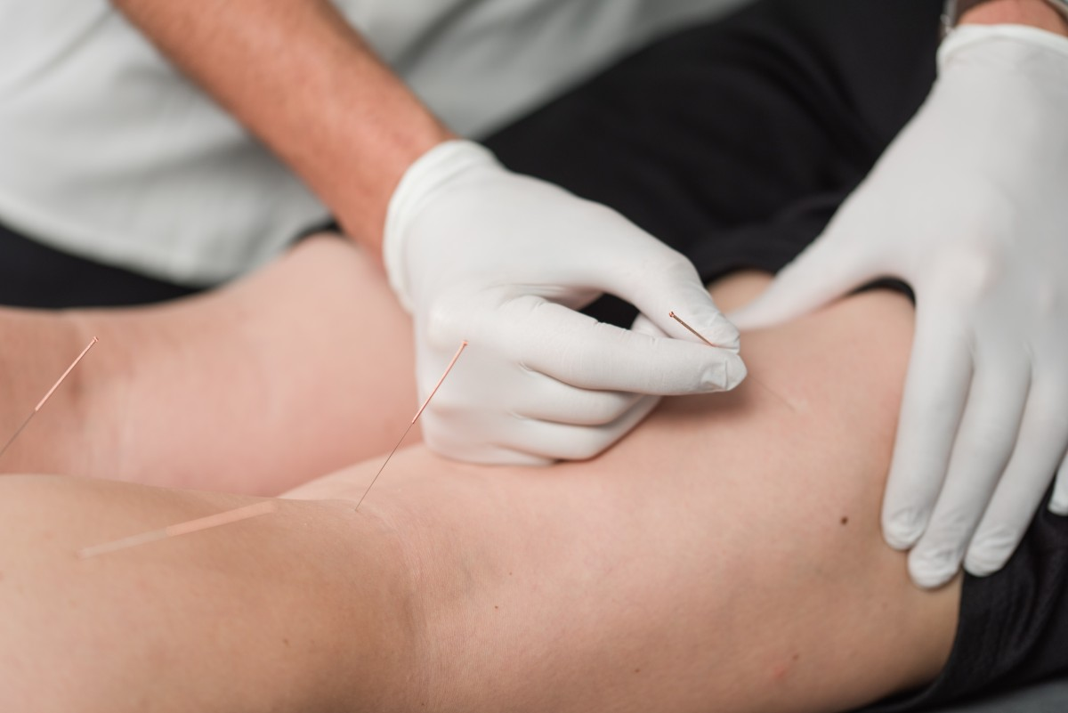 Dry Needling at Stride Physiotherapy and Wellness